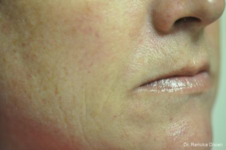 Microneedling: Patient 4 - After Image