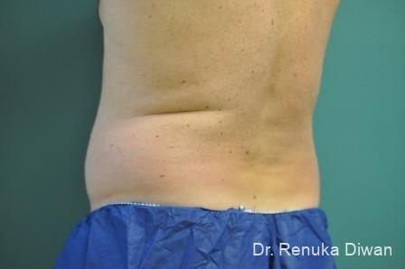 CoolSculpting®: Patient 2 - Before Image