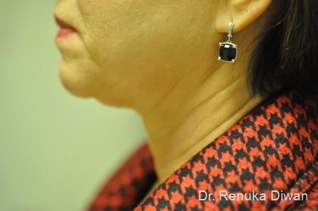 Facelift & Neck Lift: Patient 2 - Before Image 1