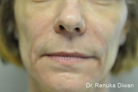 Smile Lines: Patient 2 - Before Image 1