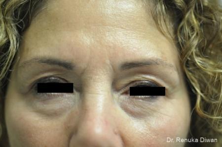 Dark Circles: Patient 16 - Before Image 1