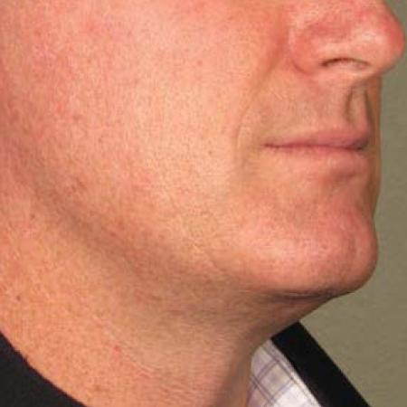 Ultherapy® - Chin: Patient 19 - Before Image
