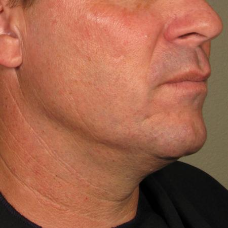 Ultherapy® - Chin: Patient 27 - After Image