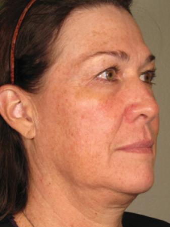 Ultherapy® - Face: Patient 2 - Before Image