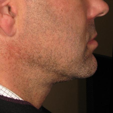 Ultherapy® - Chin: Patient 1 - After Image