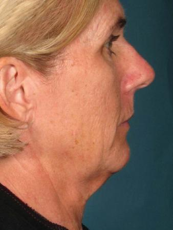 Ultherapy® - Face: Patient 15 - Before Image 1