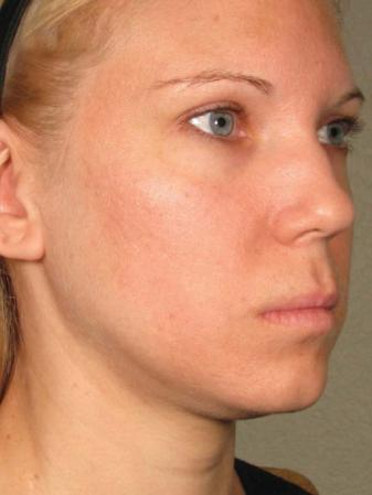Ultherapy® - Face: Patient 11 - Before Image 1