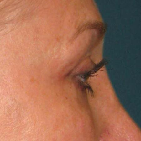 Ultherapy® - Brow: Patient 11 - After Image 1