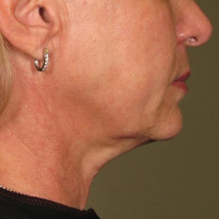 Ultherapy® - Chin: Patient 28 - After Image