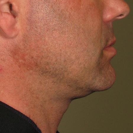 Ultherapy® - Chin: Patient 1 - Before Image