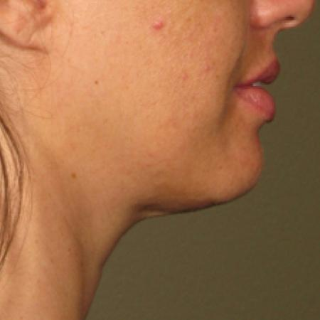Ultherapy® - Chin: Patient 9 - Before Image