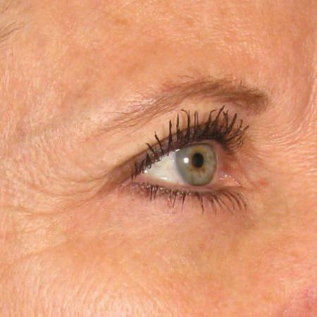 Ultherapy® - Brow: Patient 9 - Before Image