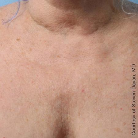Ultherapy® - Décolletage: Patient 8 - After Image