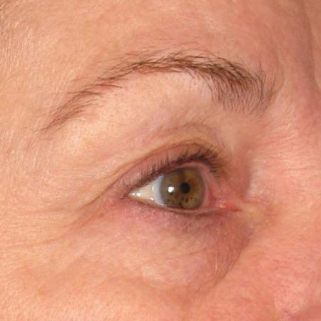 Ultherapy® - Brow: Patient 10 - After Image