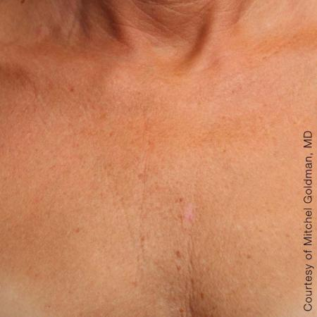 Ultherapy® - Décolletage: Patient 10 - After Image