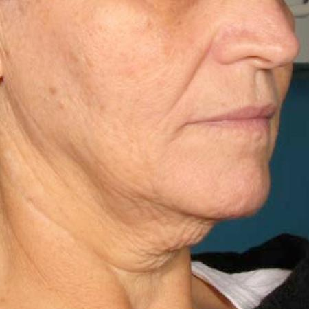 Ultherapy® - Chin: Patient 37 - Before Image 1