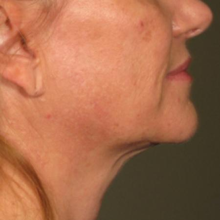 Ultherapy® - Chin: Patient 12 - After Image