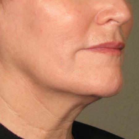 Ultherapy® - Chin: Patient 34 - After 1