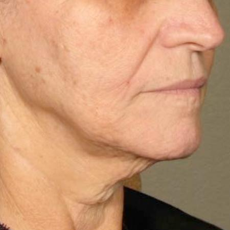 Ultherapy® - Chin: Patient 37 - After Image 1