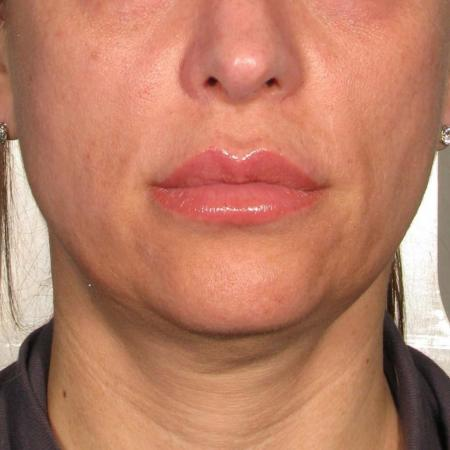 Ultherapy® - Chin: Patient 39 - Before 1