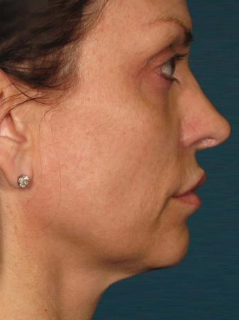Ultherapy® - Face: Patient 24 - After Image 1