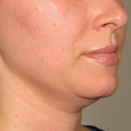 Ultherapy® - Chin: Patient 26 - Before Image