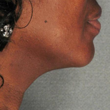 Ultherapy® - Chin: Patient 4 - After Image 1