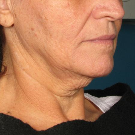 Ultherapy® - Chin: Patient 36 - Before Image 1