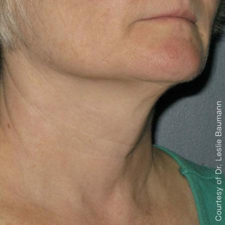 Ultherapy® - Neck: Patient 2 - After Image