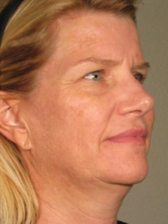 Ultherapy® - Face: Patient 3 - Before Image
