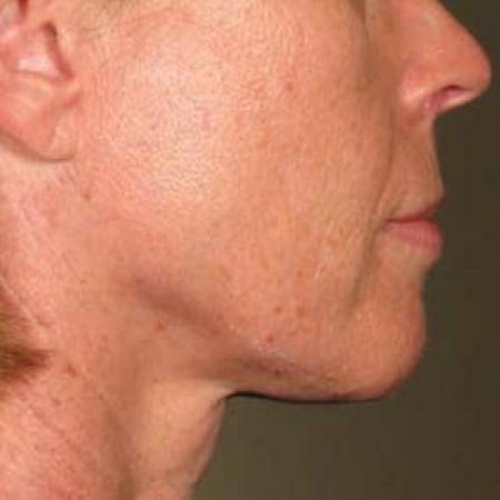 Ultherapy® - Chin: Patient 32 - After Image 1