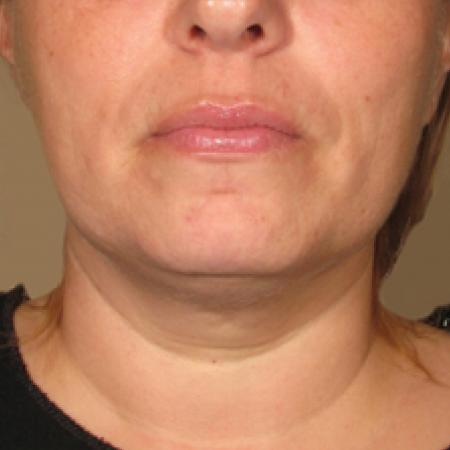 Ultherapy® - Chin: Patient 7 - After Image