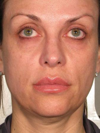 Ultherapy® - Face: Patient 23 - Before Image 1