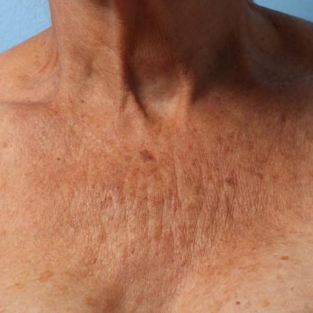 Ultherapy® - Décolletage: Patient 3 - Before Image