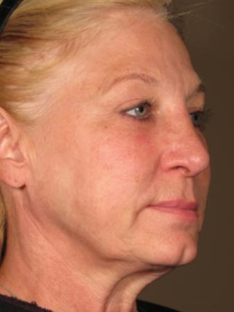 Ultherapy® - Face: Patient 4 - After Image