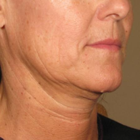 Ultherapy® - Chin: Patient 3 - Before Image