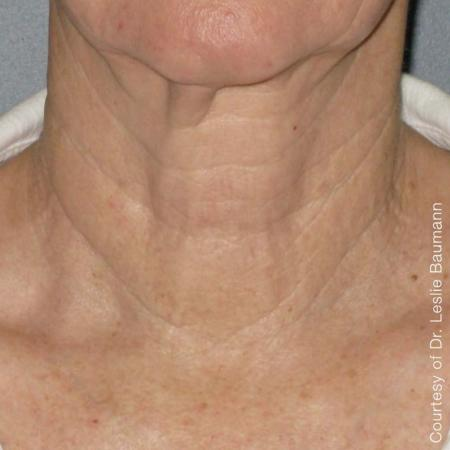 Ultherapy® - Neck: Patient 6 - After Image 1