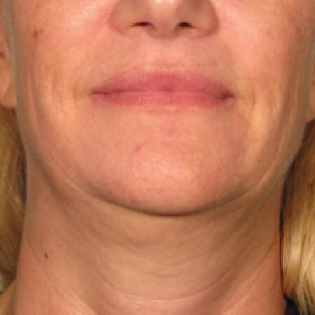 Ultherapy® - Chin: Patient 10 - Before Image