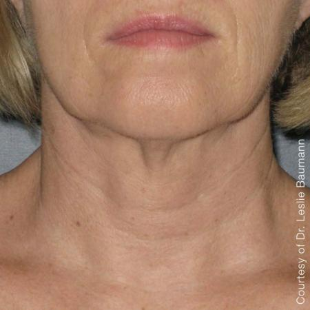Ultherapy® - Neck: Patient 9 - After Image