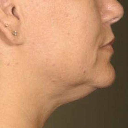 Ultherapy® - Chin: Patient 30 - After Image