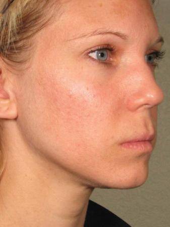 Ultherapy® - Face: Patient 11 - After Image 1