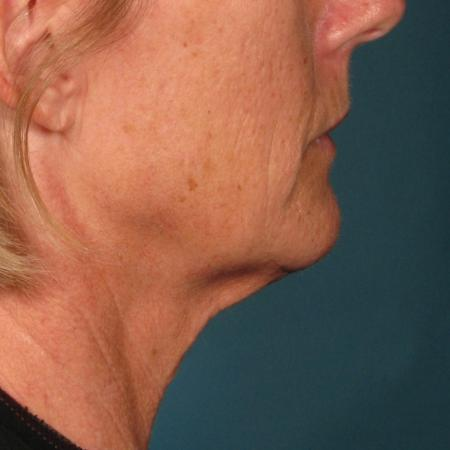 Ultherapy® - Chin: Patient 35 - After Image 1