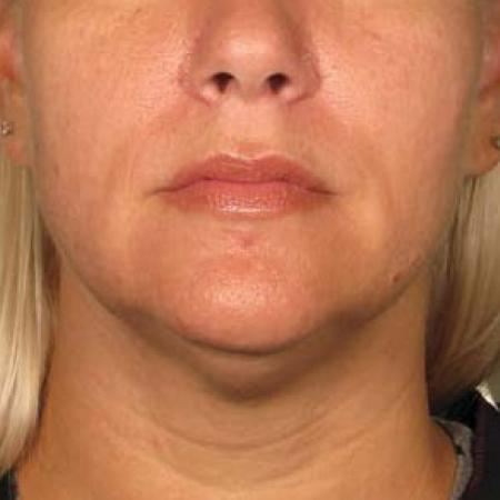 Ultherapy® - Chin: Patient 29 - After Image