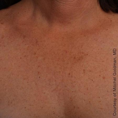 Ultherapy® - Décolletage: Patient 14 - After 1