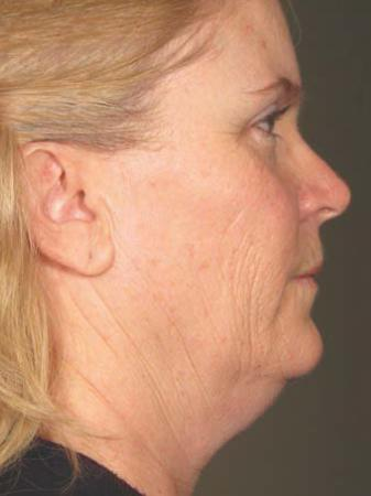 Ultherapy® - Face: Patient 18 - Before Image 1