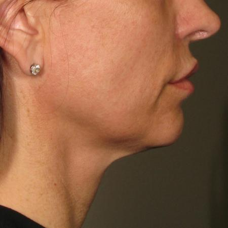Ultherapy® - Chin: Patient 38 - After Image 1