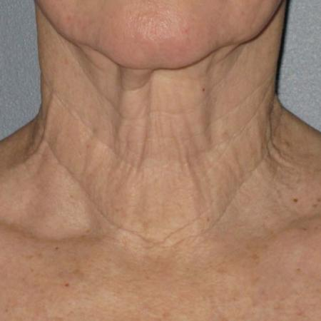 Ultherapy® - Neck: Patient 6 - Before Image 1