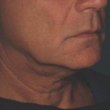 Ultherapy® - Chin: Patient 40 - Before 1