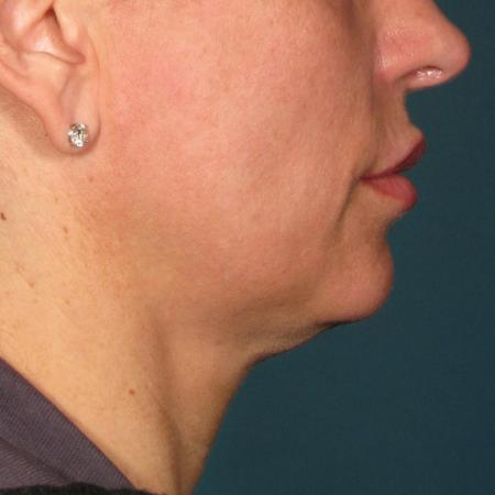 Ultherapy® - Chin: Patient 38 - Before Image 1
