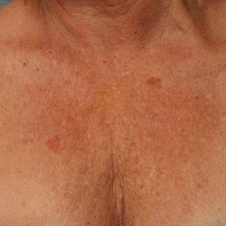 Ultherapy® - Décolletage: Patient 9 - Before Image